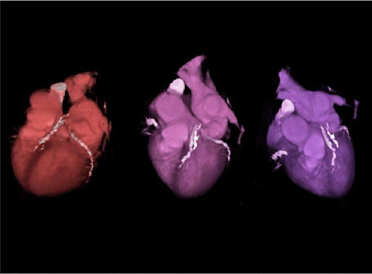 cardiac ct thesis Importance of cardiac oxygen supply, atp production and autonomic control 2017 this doctoral thesis in natural sciences, specialising in zoophysiology, is authorised by the faculty of science to be publicly keywords: acclimation, coronary, ctmax, enzyme, global warming, heart.
